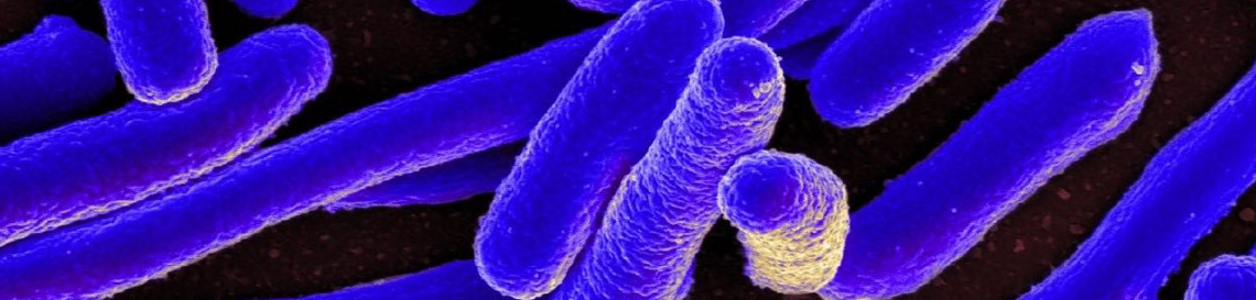 Colorized scanning electron micrograph of E. coli