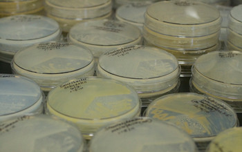 Photo of petri dishes containing bacteria harvested from amoebae.