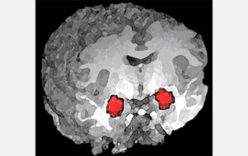 3-D magnetic resonance imaging rendering of the human brain, functional MRI highlighted in red.
