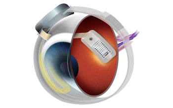 Illustration of an eyeball with retinal implant
