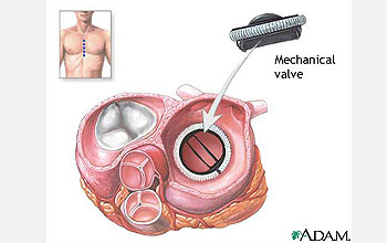 Illustration shows circular mechanical valve inside heart.