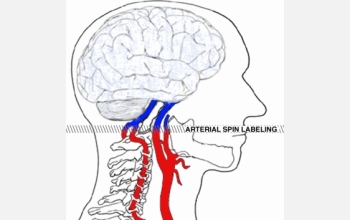 "Arterial spin labeling uses an fMRI magnet to ""tag"" water molecules in the patient's blood"