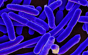 colorized E. coli