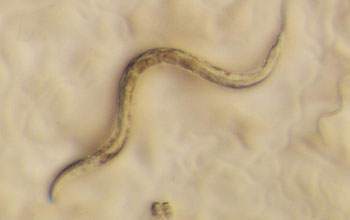 Photomicrograph of the roundworm Caenorhabditis elegans.