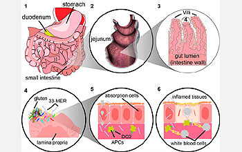 inflamed tissues and white blood cell segment from progression within a patient's intestine