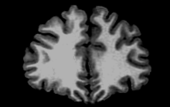 MRI scan of a 24 year-old male human brain.
