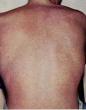 Bare back of a man showing rash seen in people with dengue fever.
