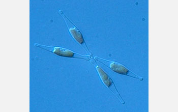 Micrograph of the fusiform morphotype of the diatom Phaeodactylum tricornutum.