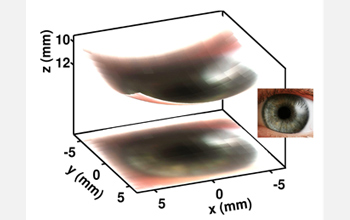 Photo showing the actual image of an eye obtained with the new 256-pixel electronic eye camera.