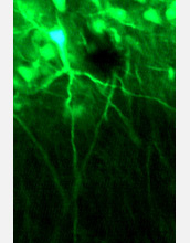 Photo of neurons within a rodent amygdala labeled with green fluorescence.