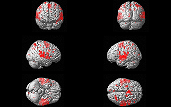 Images of the brain.