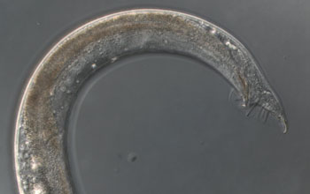 Photo of a C. elegans worm tail belonging to a male, showing sensory rays.