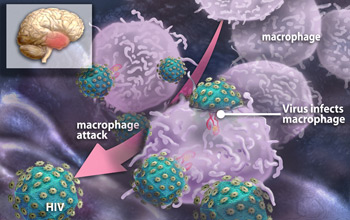 This illustration depicts white blood cells swarming to attack HIV in the brain