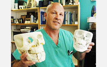Photo of surgeon Jon Wagner holding plastic casts of fractured jaws.