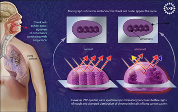 Illustration showing nano-scale disturbances in cheek cells indicate the presence of lung cancer.
