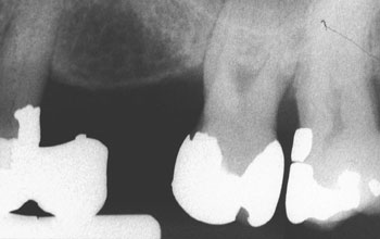 X-ray image of teeth at different angle
