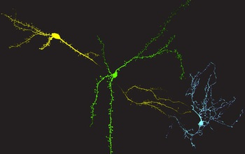 Color image of neurons