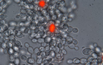 Image of snowflake yeast with dead cells stained red.
