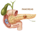 Cancerous pancreas shown with duodenum