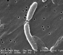 Scanning electron micrograph depictintg two Vibrio cholerae bacteria about to separate.