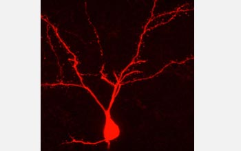 Photo of a rat neuron filled with an agent.