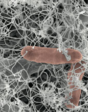Scanning electron micrograph of bacteria, red, in initial stages of biofilm formation.