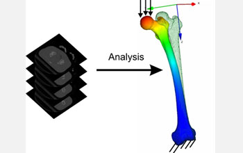 Stress analysis in a human femur performed directly from biomedical images.