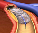 Illustration showing a stent through an artery near the heart.