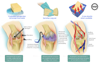 Illustration of ultrasound technology relieving pain and swelling in a knee with osteoarthritis.