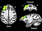 brain images from different angles