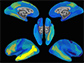 brain maps showing neural activation patterns