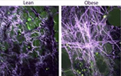 breast tissue from obese mice