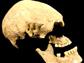 the Stuttgart skull from a 7,000-year-old skeleton