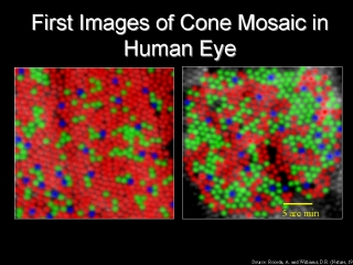 First Images Of Cone Mosaic In Human Eye